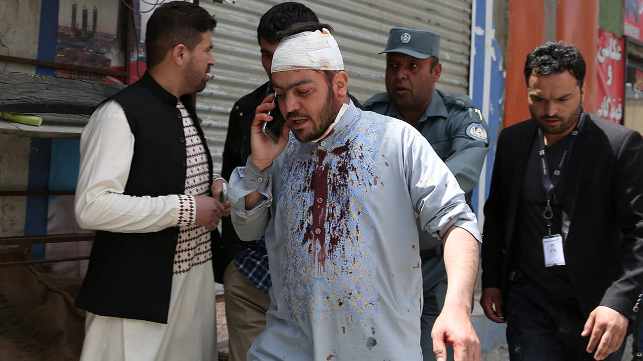 Photo of an injured man talking on the phone after the explosion in Kabul